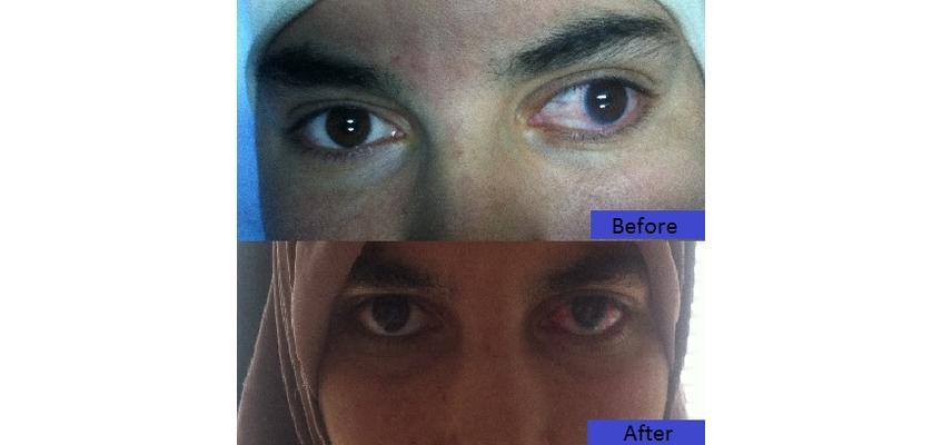 dr mehdi fezzani soins des yeux sousse tunisie obtenez un devis gratuit. Black Bedroom Furniture Sets. Home Design Ideas