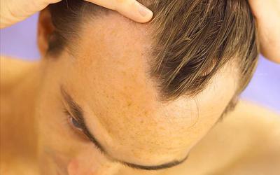 إسطنبول  القبلة الأولى لزراعة الشعر لدى العرب
