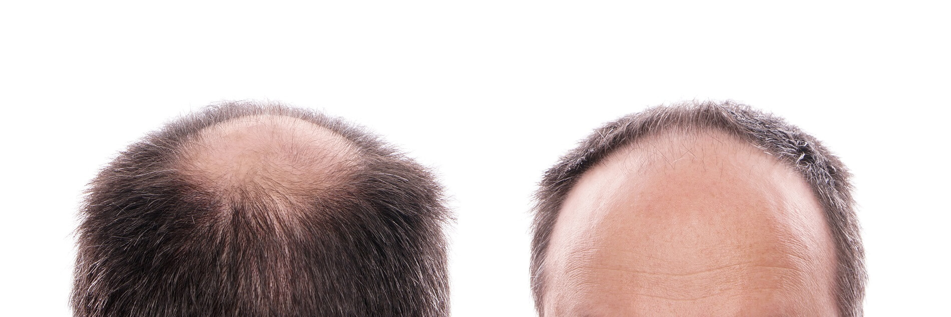 Beard Hair Transplant  in Brazil