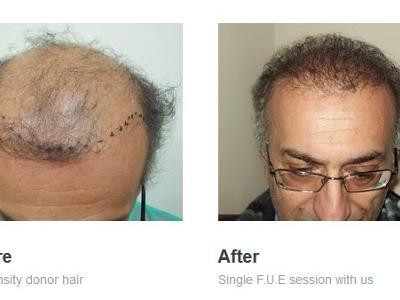 High Density Hair Transplant Clinic, Athens, Greece
