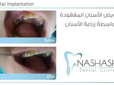 Nashash Dental Clinic, Amman, Jordan