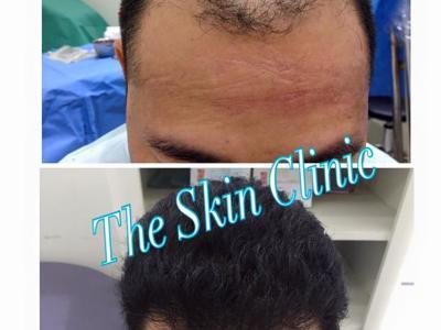 Dr. Narupaves's Hair Transplant Center, Bangkok, Thailand