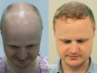 FORHAIR Hair Transplant Korea, Seoul, South Korea