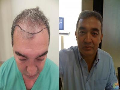 VIP Hair Clinic Cyprus, Nicosia, Cyprus