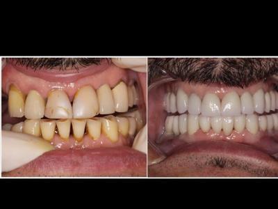 Cota Dentist Marin Herminia, Los Algodones, Mexico