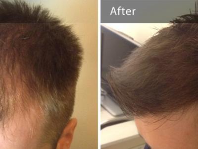 Dermatologist Dr. Karalexis - Expert in FUE Hair Transplantation - DermaHair Clinic , Athens, Greece