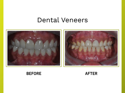 Opus Dental Specialities Clinic, Mumbai, India