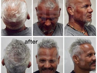 Elaen Hair Transplant Center Guadalajara, Guadalajara, Mexico