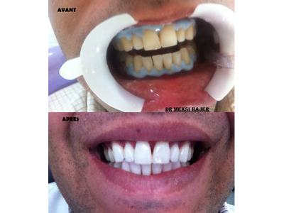 Dr. Hajer Meksi Dental Clinic, Sousse, Tunisia