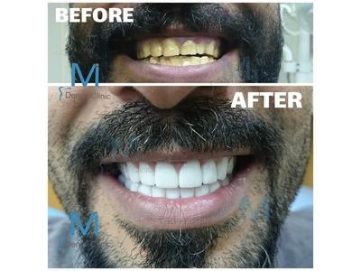 MI Dental Clinic, Beirut, Lebanon