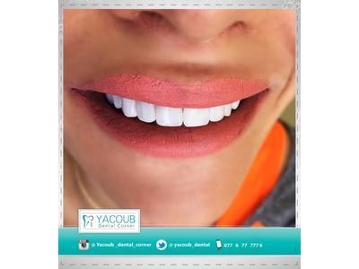 Yacoub Dental Corner, Amman, Jordan