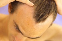 Tunisia Becoming Recognized Leader in Hair Restoration